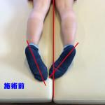 腰の不調の施術例
