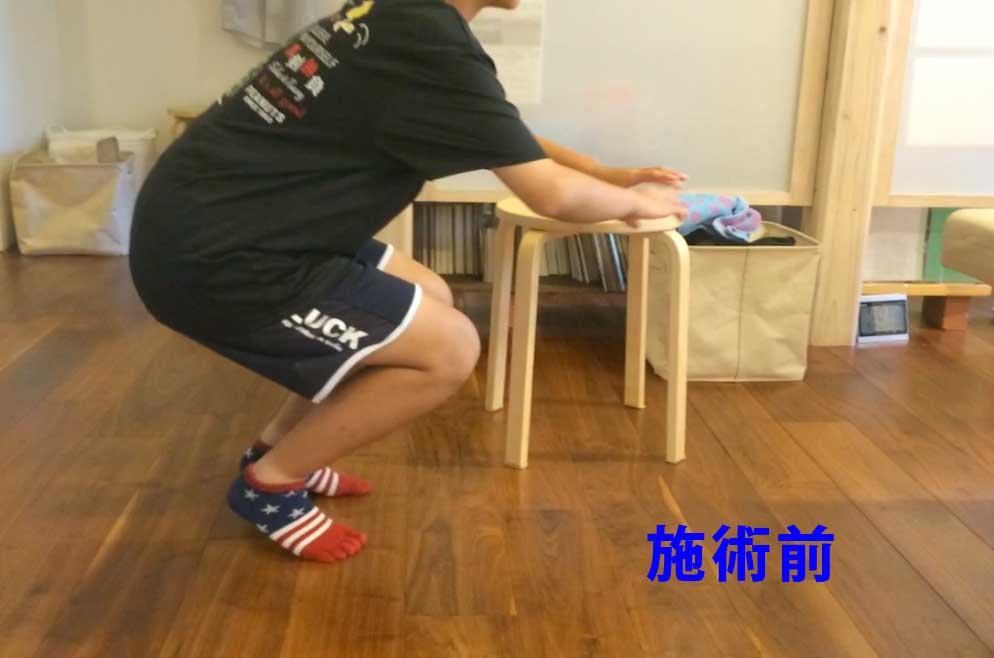 【9割楽に!オスグット特殊施術・中学1年生女子ハンドボール部】