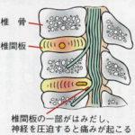 椎間板ヘルニアと診断された方の施術例