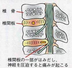 椎間板ヘルニアの症状と施術例